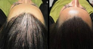 Remedy-For-Hair-Regrowth-This-Magic-Recipe-Will-Make-Your-Hair-Grow-Like-Crazy-You'll-Be-Surprised-By-The-Results
